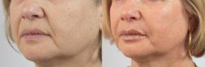 Efekty kwasu hialuronowego na usuwanie zmarszczek