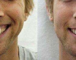 zabieg uśmiech dziąsłowy przed i po