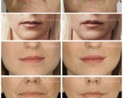 powiekszanie ust efekty przed i po