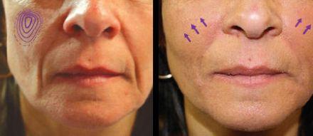 efekty po zabiegu wolimetrii twarzy