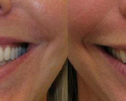 botox na uśmiech dziąsłowy efekty