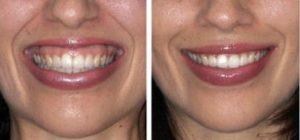 efekty zabiegu na uśmiech dziąsłowy