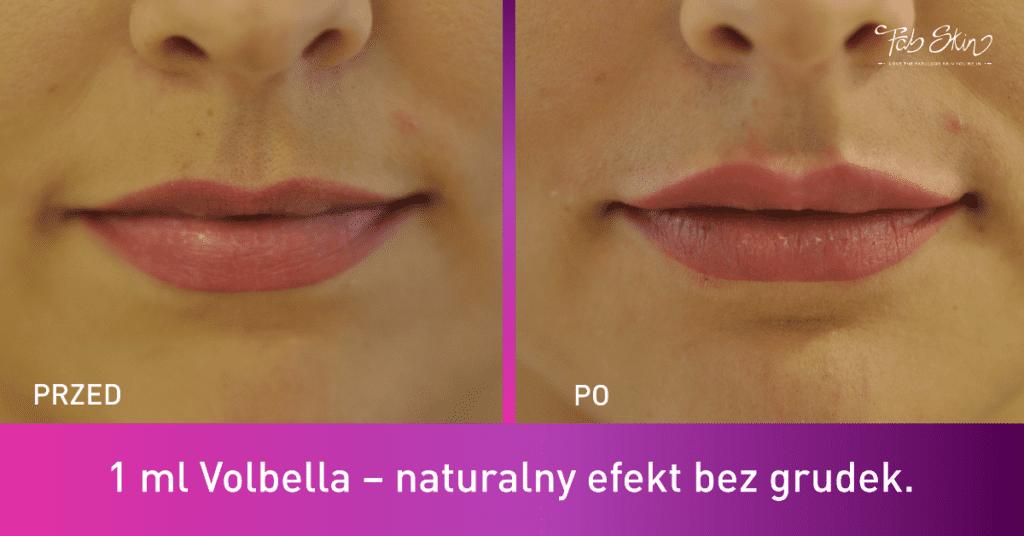 powiększenie ust warszawa kwas hialuronowy juvederm volbella