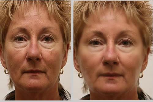 kobieta efekty liftingu przed i po