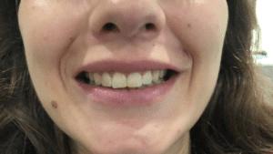 Leczenie uśmiechu dziąsłowego botoksem w Warszawie