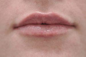 Powiększanie ust kwasem hilaluronowym w Warszawie
