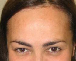 Efekty zabiegów botoxem