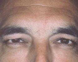 Zabieg botox mężczyzna po