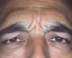 Zabieg botox mężczyzna przed
