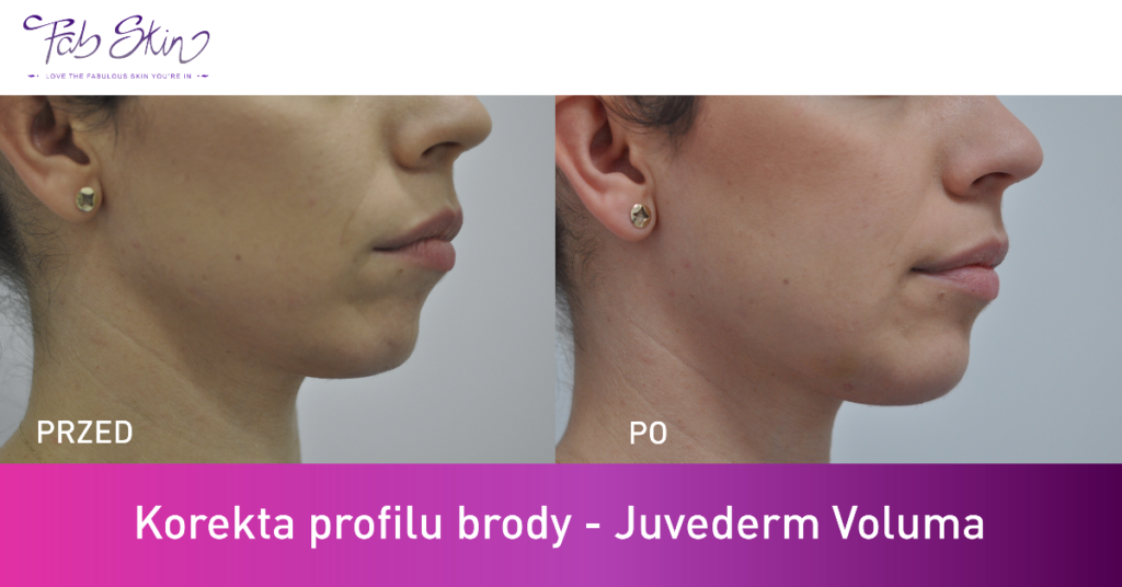 Korekta profilu bordy juvederm voluma