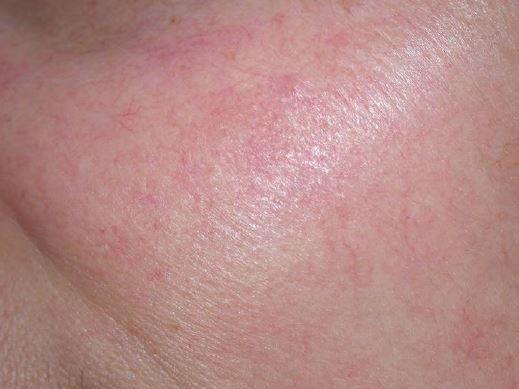 Efekty zabiegu laserowego usuwania trądziku różowatego