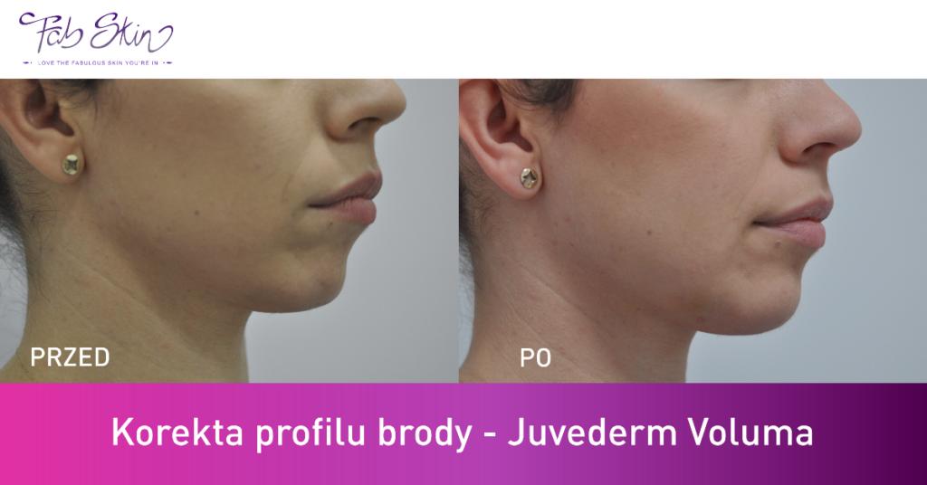 Efekty zabiegu wypełniania brody kwasem hialuronowym