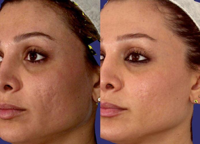 Efekty zabiegu usuwania blizn potrądzikowych za pomocą lasera