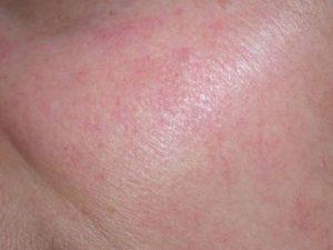 Efekty zabiegów laserowego usuwania rumienia