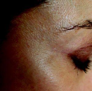 Efekty zabiegu laserowego usuwania zmian naczyniowych