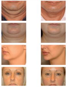 Efekty zabiegów z wykorzystaniem fali radiowych na twarz