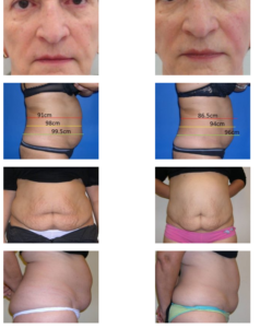 Efekty zabiegów modelowania ciała ultradźwiękami