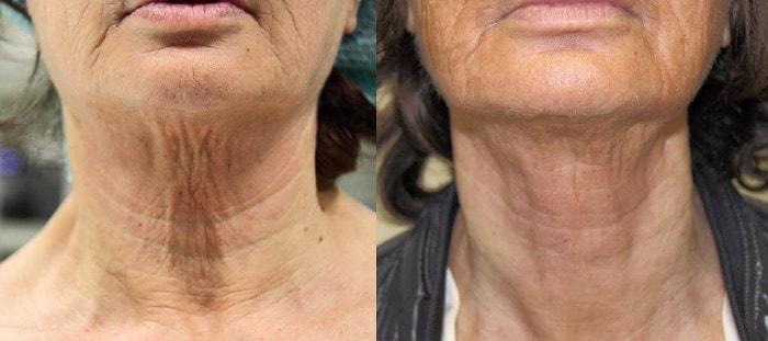 Efekty bezoperacyjnego liftingu szyi