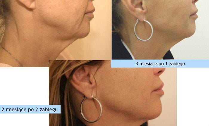 Efekty bezoperacyjnego liftingu okolic żuchwy