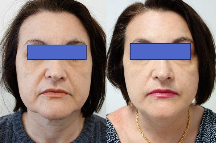 Efekty bezoperacyjnego liftingu twarzy