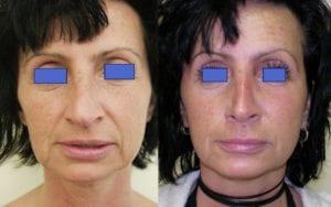 Bezoperacyjny lifting twarzy bez skalpela efekty ultraformer
