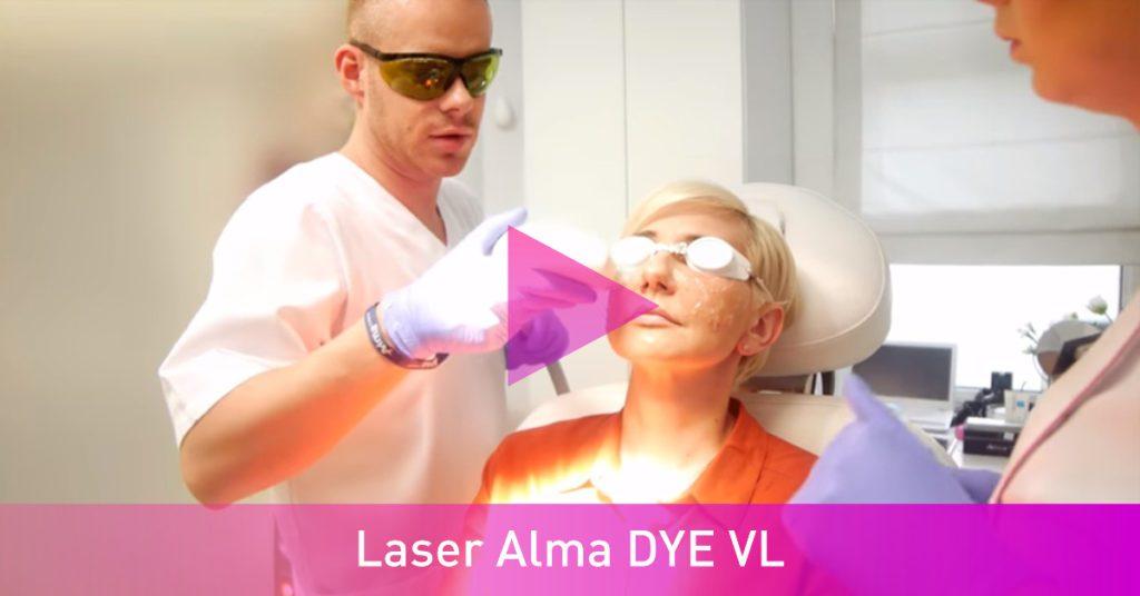 laser Alma DYE VL