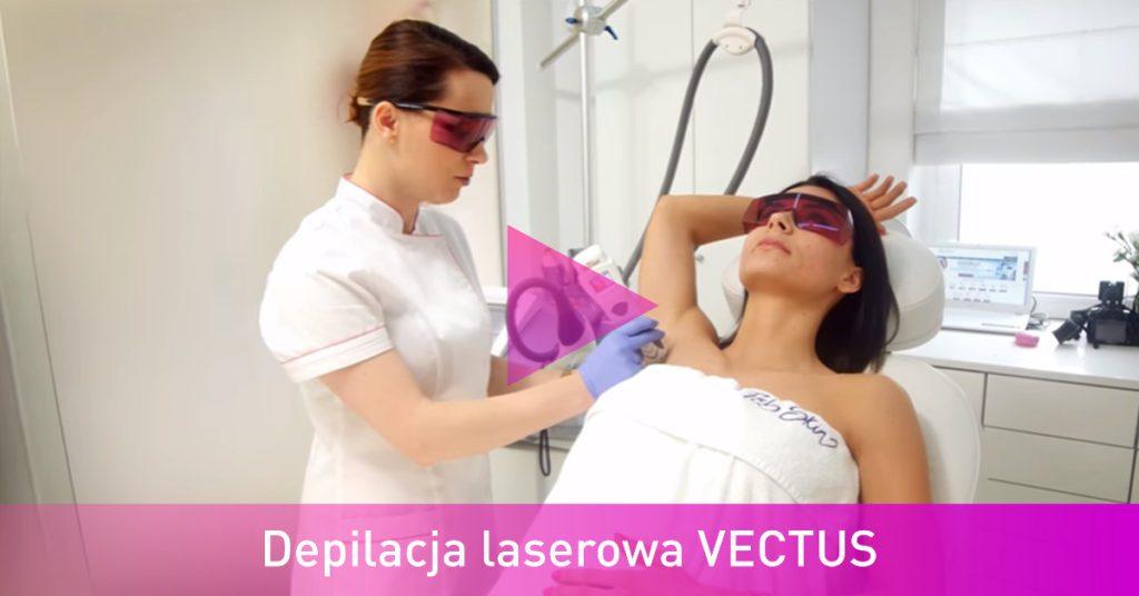 Depilacja laserowa VECTUS