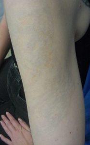 Efekty usuwania tatuaży