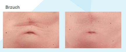 Efekty zabiegów wyszczuplających brzuch