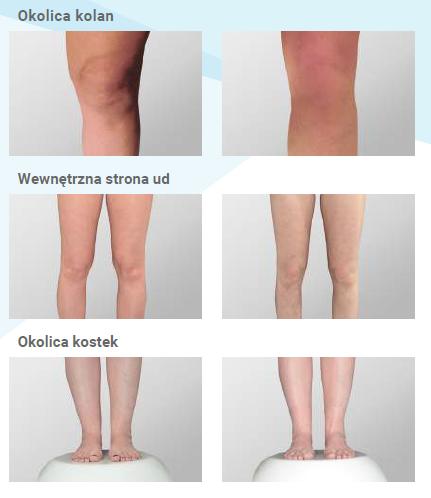 Efekty zabiegów na nogi