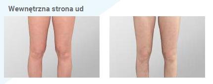 Efekty wyszczuplających zabiegów na uda