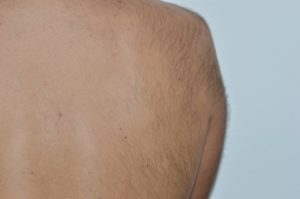 Efekty zabiegów kosmetycznych na plecy