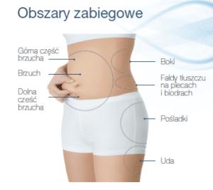 Trwała redukcja tłuszczu z ud, brzucha, boczków i pośladków przy użyciu urządzenia Scizer