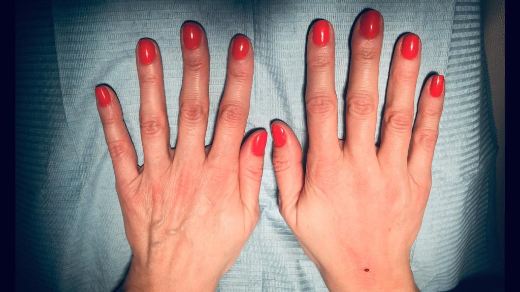 Rewitalizacja skóry dłoni kwasem hialuronowym_przed po