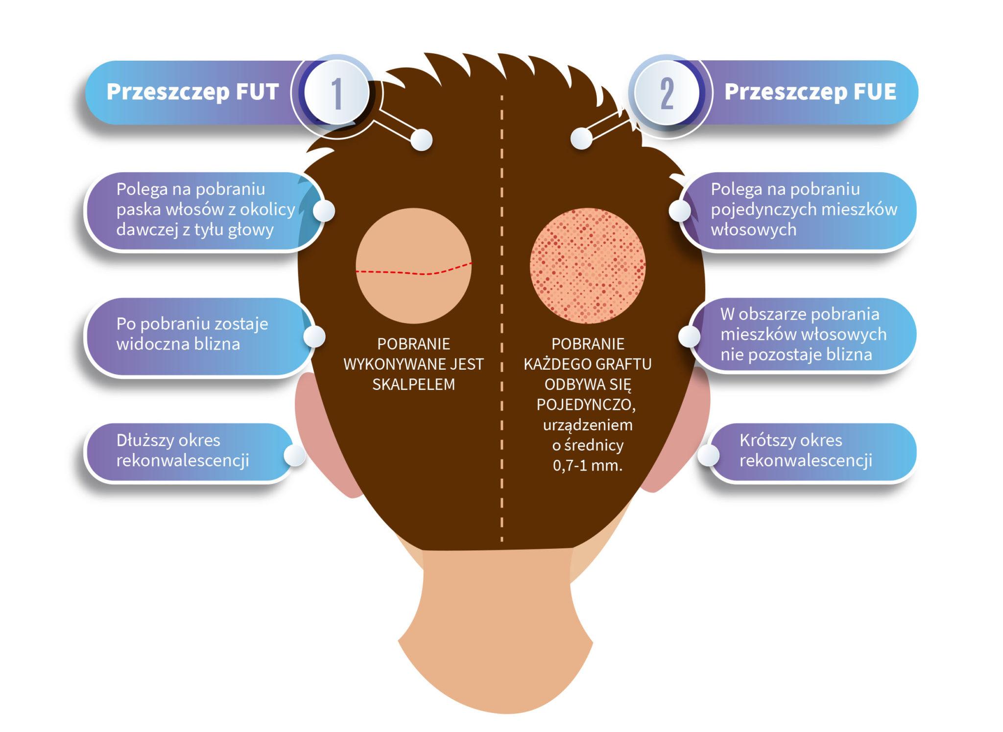 Różnice między przeszczepem włosów FUT a FUE