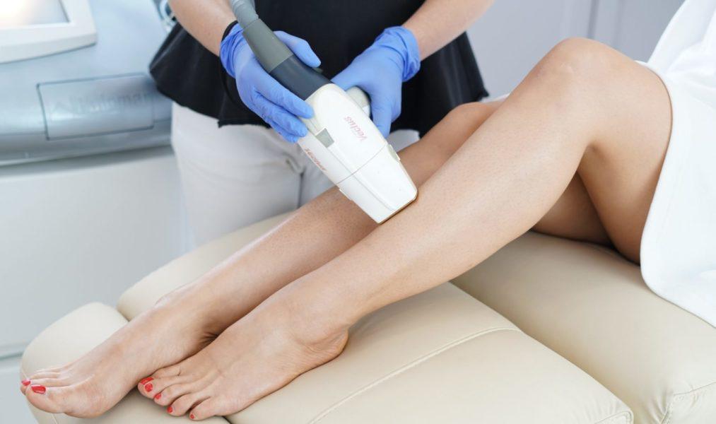 Laserowe usuwanie owłosienia z nóg na Bemowie w Warszawie