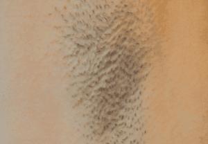 Efekty depilacji laserowej