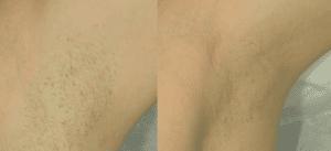 Efekty zabiegu depilacji jasnych włosów