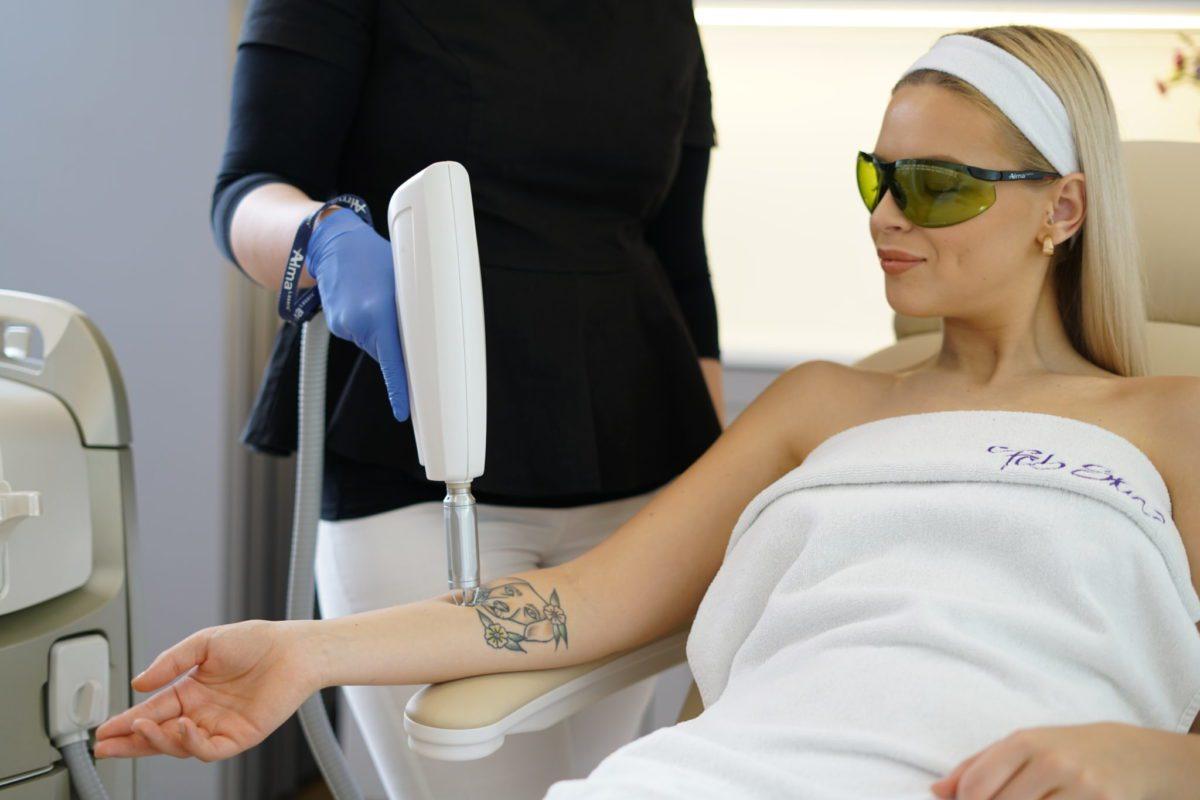 Zabiegi usuwania tatuażu laserem w Warszawie