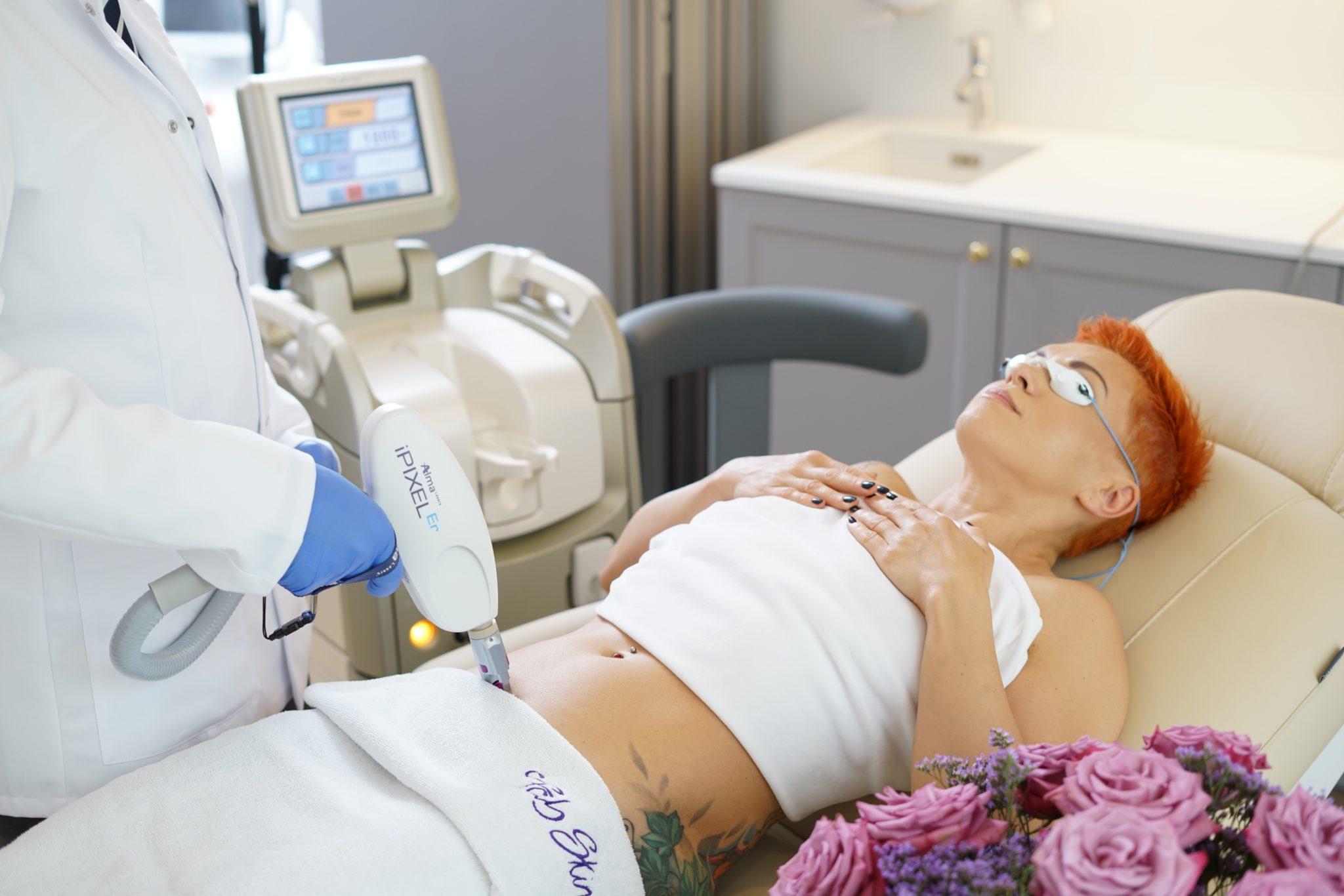 Laserowe usuwanie blizny po cesarskim cięciu na Bemowie w Warszawie