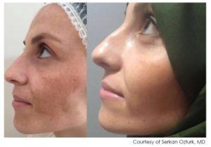 Efekty zabiegów z użyciem lasera tulowego Lavieen