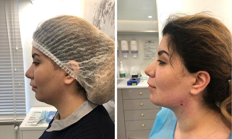 Efekty przed i po liposukcji podbródka metodą Endolift w Warszawie